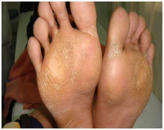 «гусиная кожа», или фолликулярный гиперкератоз: лечение в домашних условиях