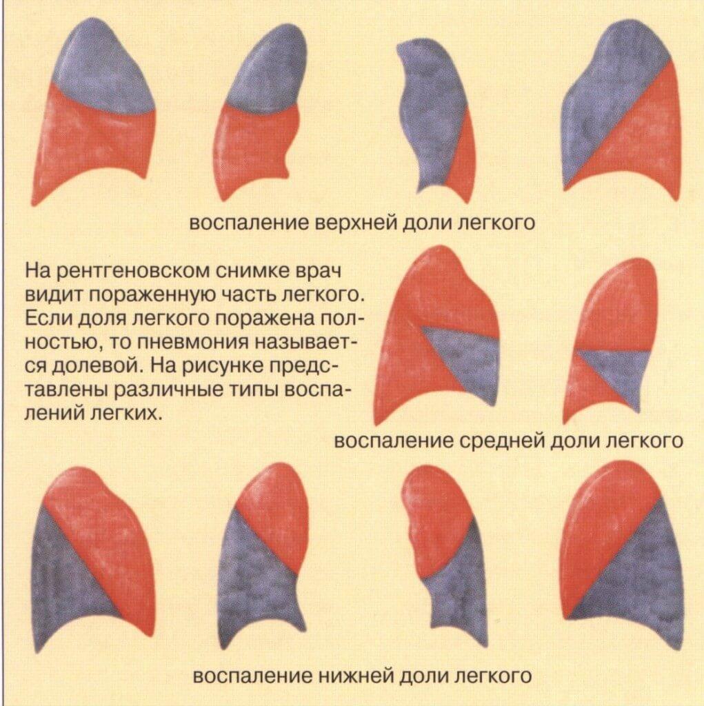 Чем отличается пневмония от воспаления легких