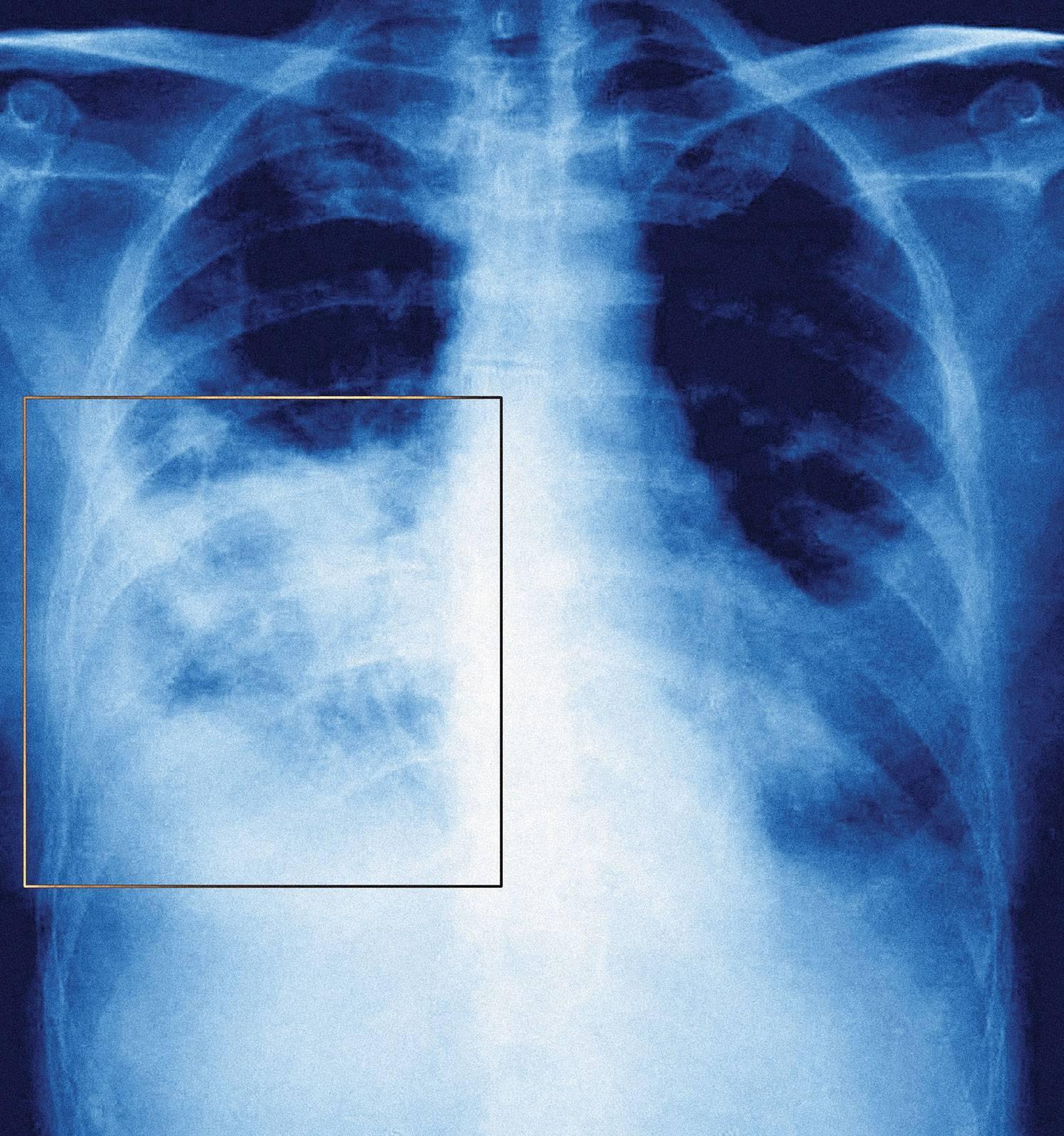 Пневмония и воспаление легких: одно и то же или различные патологии?