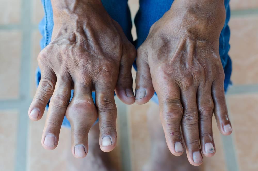 Подагрический артрит: причины, симптомы и лечение