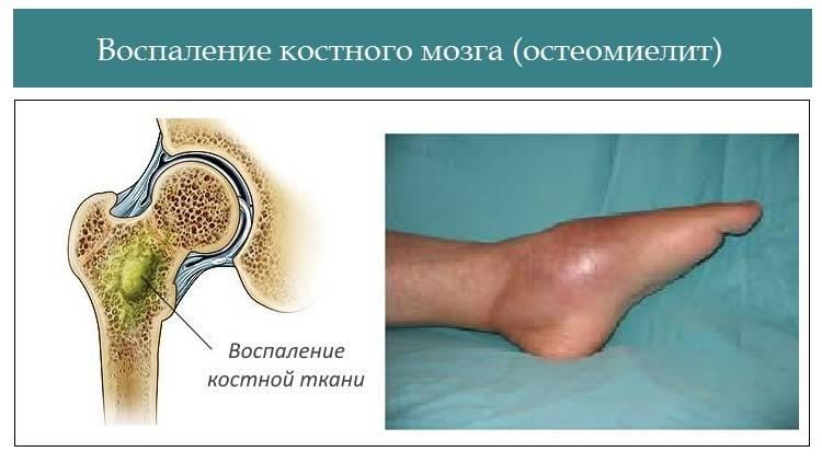 Остеомиелит: причины, симптомы и лечение заболевания