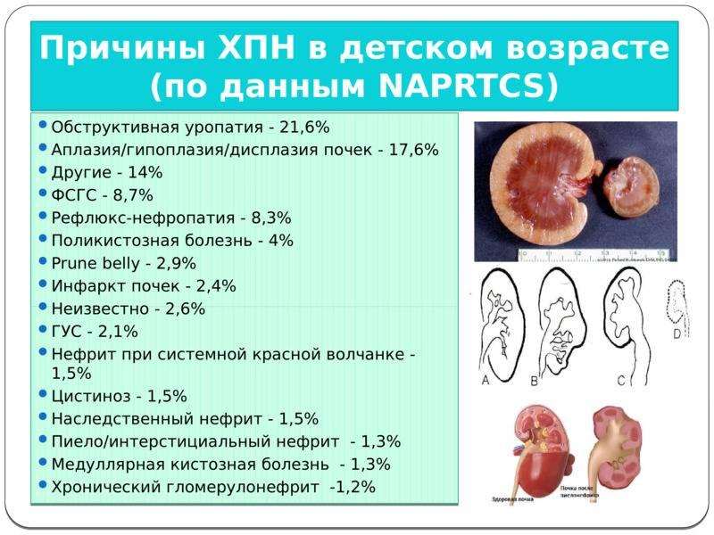 Почечная недостаточность. причины, симптомы, признаки, диагностика и лечение патологии.