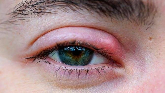 Воспаление верхнего века: как лечить это глазное заболевание?