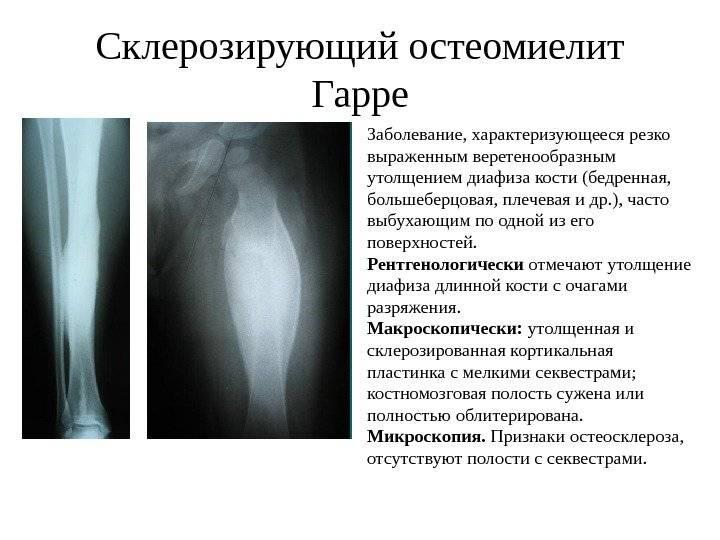 Острый остеомиелит: симптомы и лечение