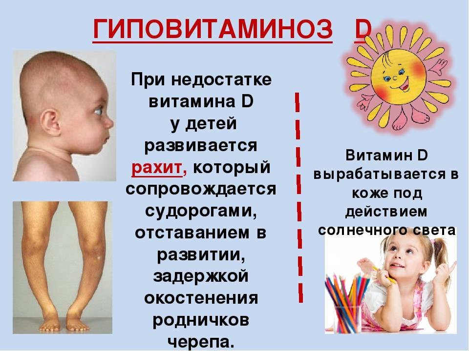 Гиповитаминоз витамина a
