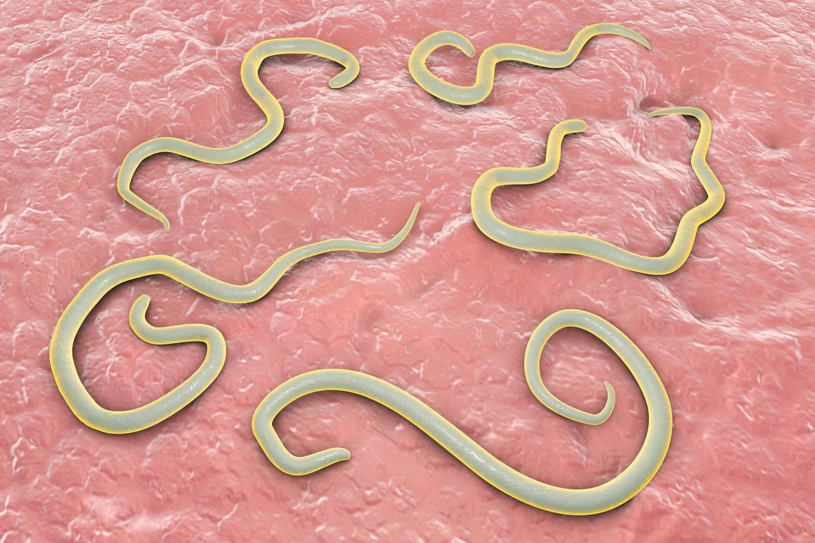 Гельминты (глисты).гельминтозы гепатобилиарной системы и кишечника.