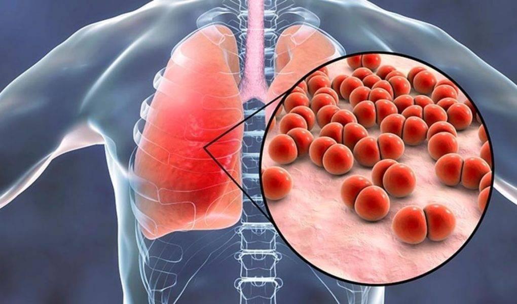 Причины (этиология) пневмонии: как и от чего появляется воспаление легких?