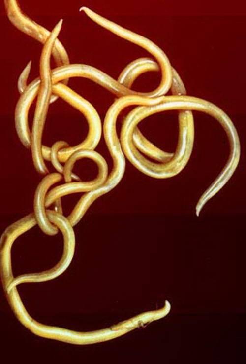 Гельминтозы: аскаридоз, энтеробиоз — причины, симптомы и лечение