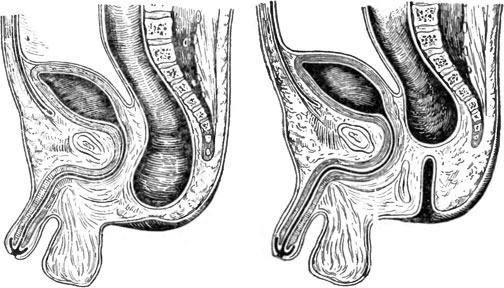 Колостома — как жить после операции, полезные рекомендации пациентам