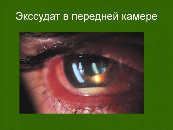 Увеит – что это такое, как лечить острую болезнь глаза, причины