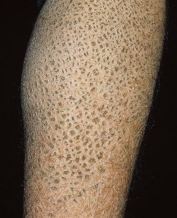 Фолликулярный гиперкератоз