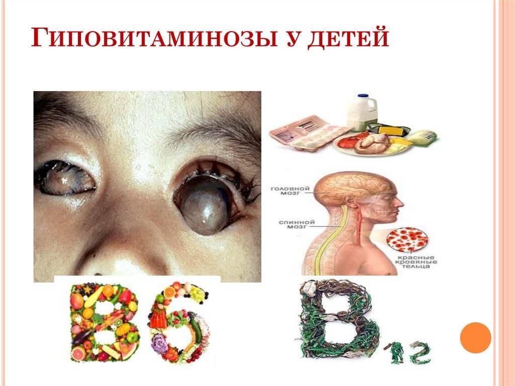 Авитаминоз: симптомы и причины. что такое гиповитаминоз?