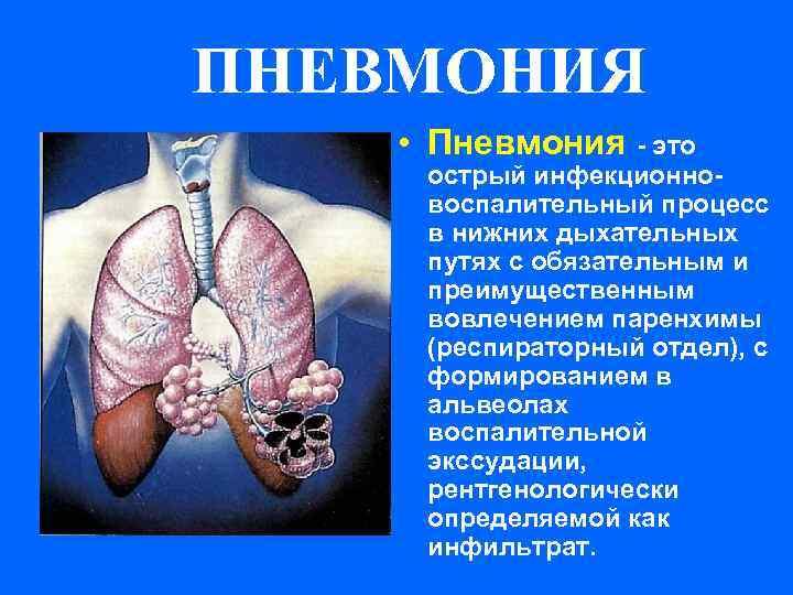 Может ли пневмония протекать без симптомов – бессимптомное воспаление легких