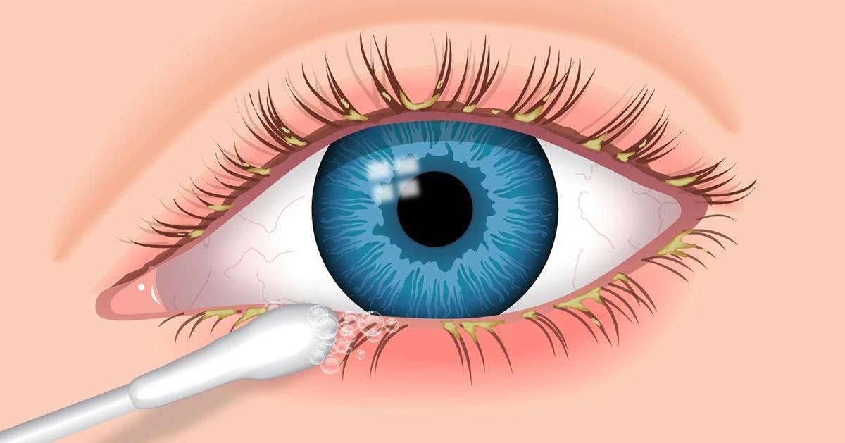 Заболевания глаз. часть 1. кожа вокруг глаз и веки, заболевания конъюнктивы, слезных органов и наружной оболочки глаза