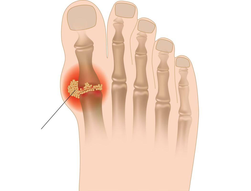 Подагрический артрит (подагра)