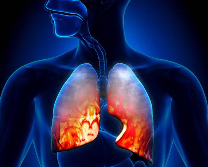 Что такое пневмонит и чем отличается от пневмонии?