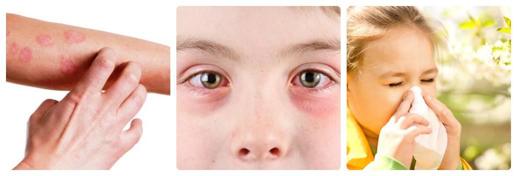 Аллергия на домашнюю черепаху