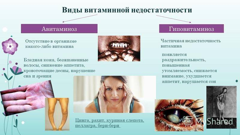 Гиповитаминоз витамина а (ретинол) - описание болезни