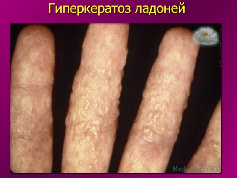 Гиперкератоз плоского эпителия шейки матки: признаки, лечение