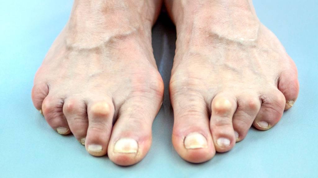 Симптомы и лечение подагрического артрита