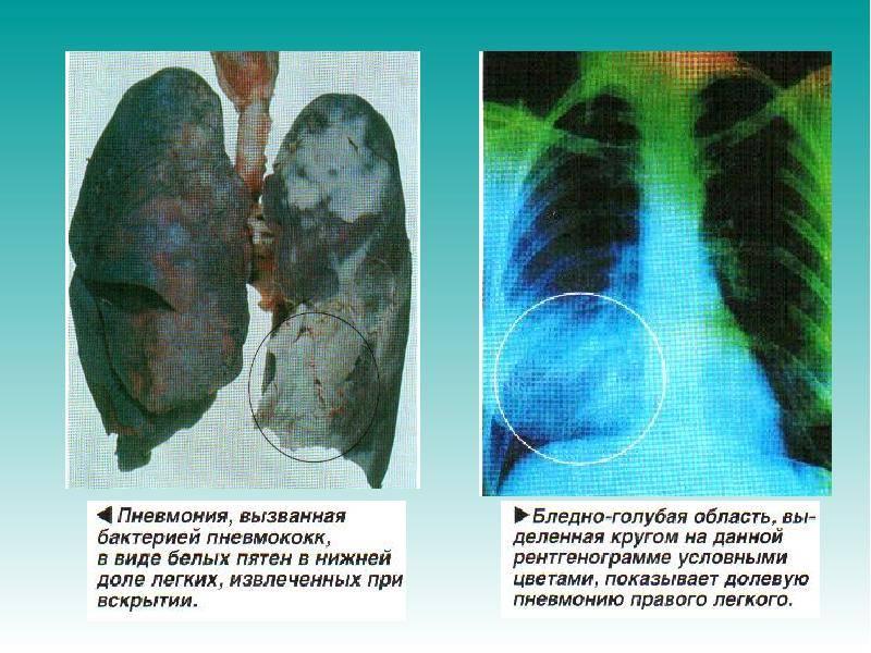 Разница между пневмонией и воспалением легких
