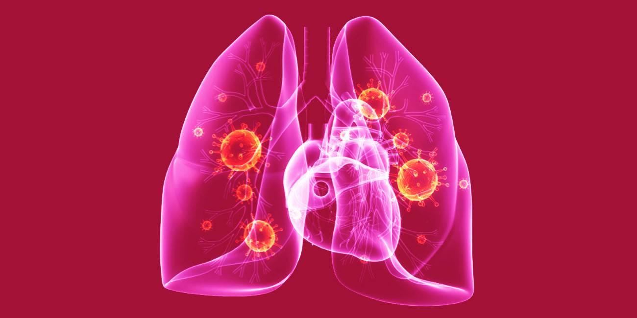 Воспаление легких: коротко оглавном