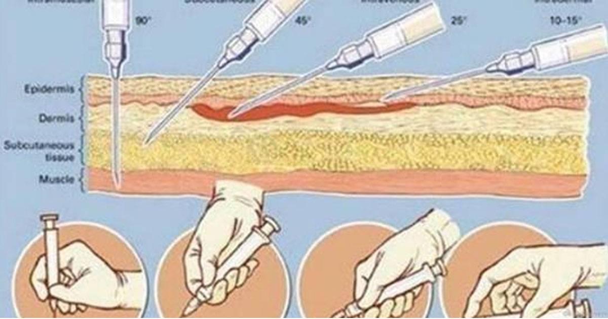 Лечебная инъекция: как сделать укол собаке внутримышечно и подкожно, в холку и в бедро?
