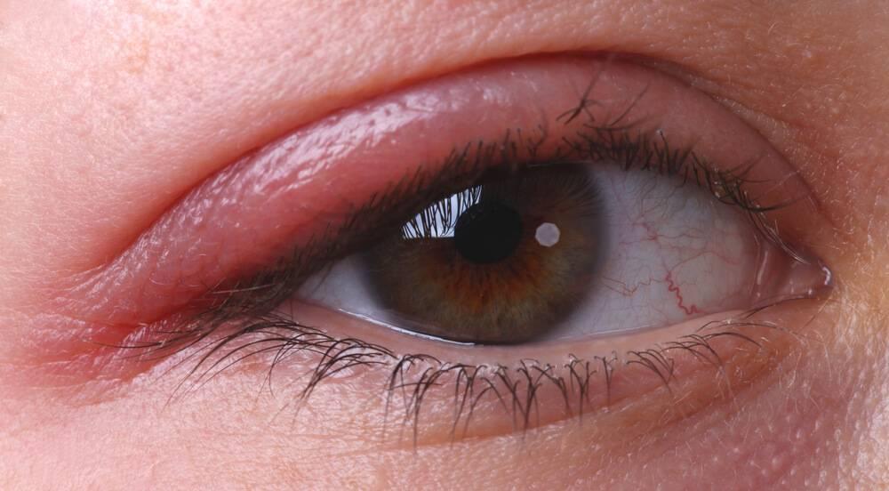 Чем лечить воспаление нижнего, верхнего века глаза?