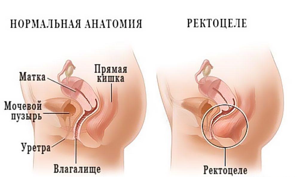Опущение и выпадение внутренних половых органов (пролапс гениталий)
