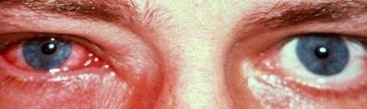 Увеит глаза — причины, признаки, симптомы и лечение