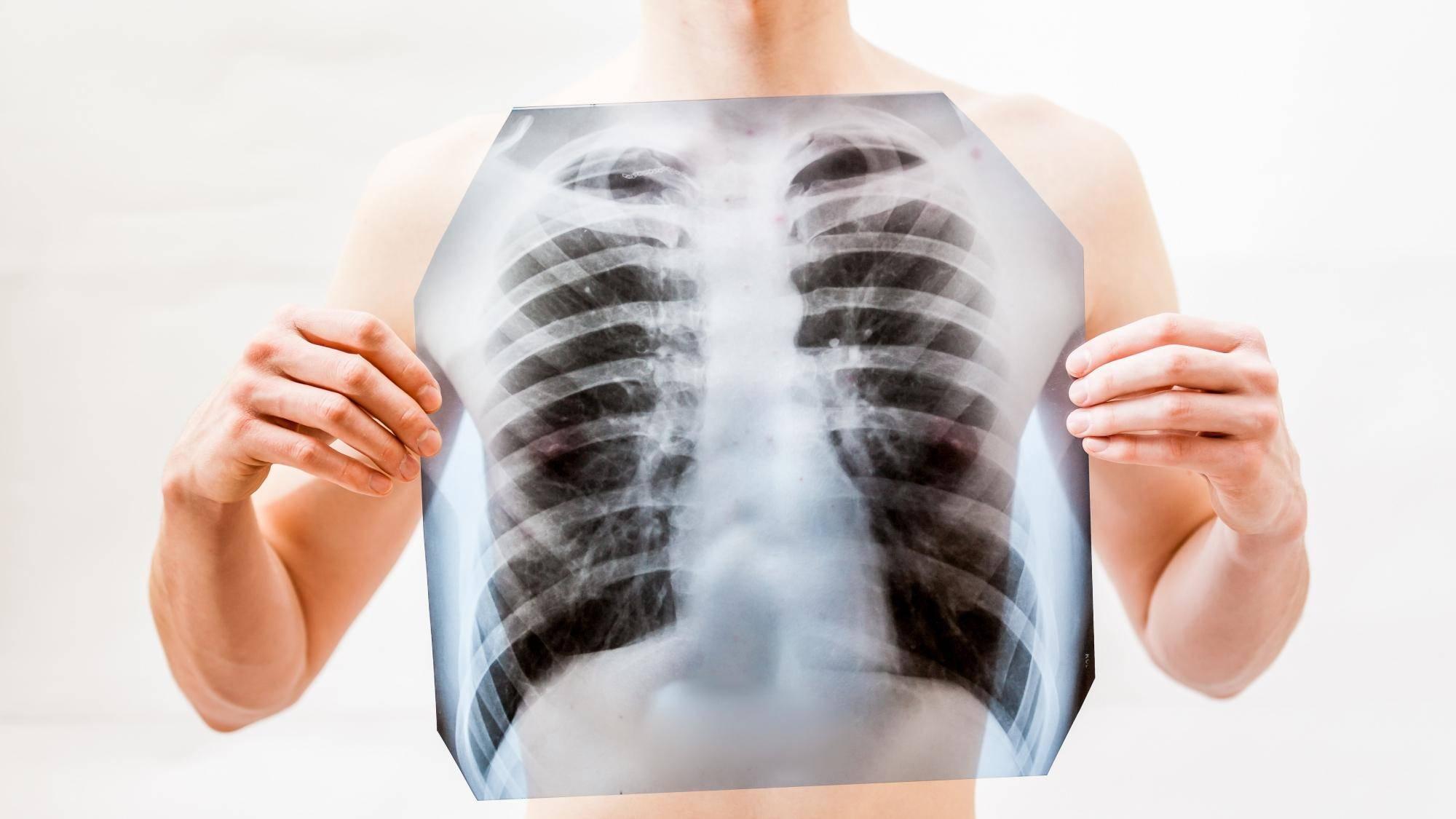 Отличается ли пневмония от воспаления легких