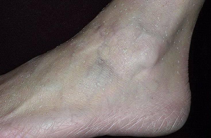 Фолликулярный кератоз: лечение, симптомы и причины появления