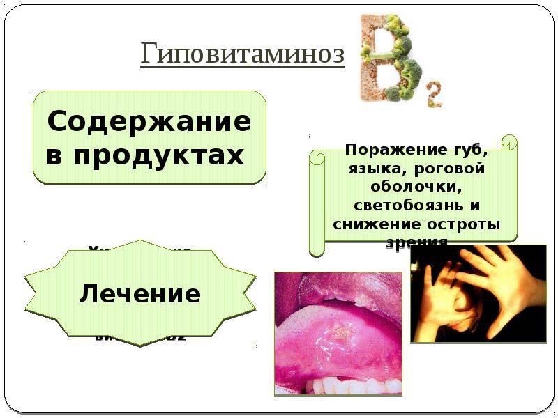 Гиповитаминоз витамина а (ретинол)