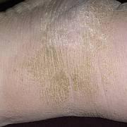 Гиперкератоз — кожи и плоского эпителия (фото), лечение и препараты