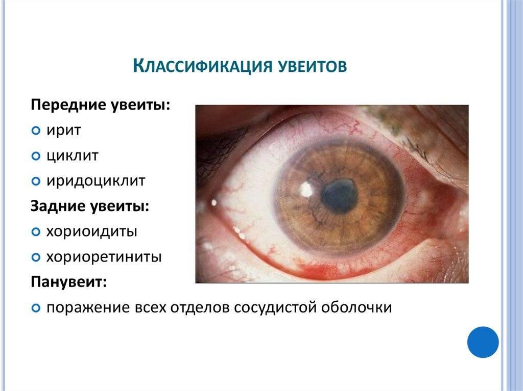 Увеит: симптомы, диагностика и лечение