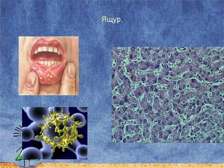 Болезни, вызываемые днк-содержащими вирусами.