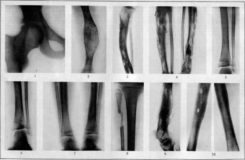 Остеомиелит – симптомы, причины, виды и лечение остеомиелита