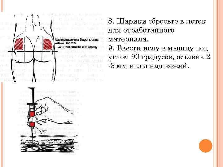 Как делать укол в ягодицу: очень подробная инструкция
