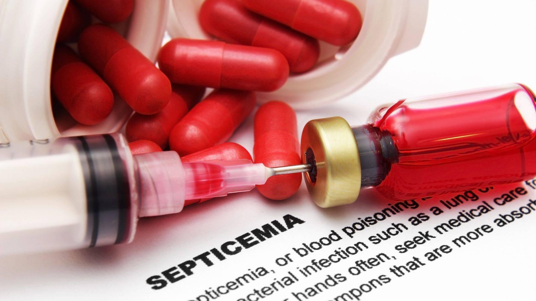 Сепсис крови — что это такое, последствия и лечение