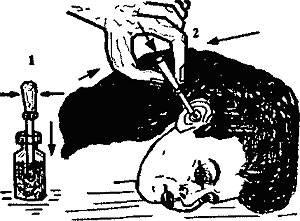 Как правильно закапать капли новорожденному ребенку в нос, уши и глаза?