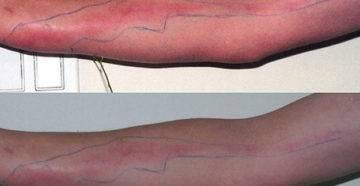 Сепсис (заражение крови): причины, симптомы, диагностика и лечение