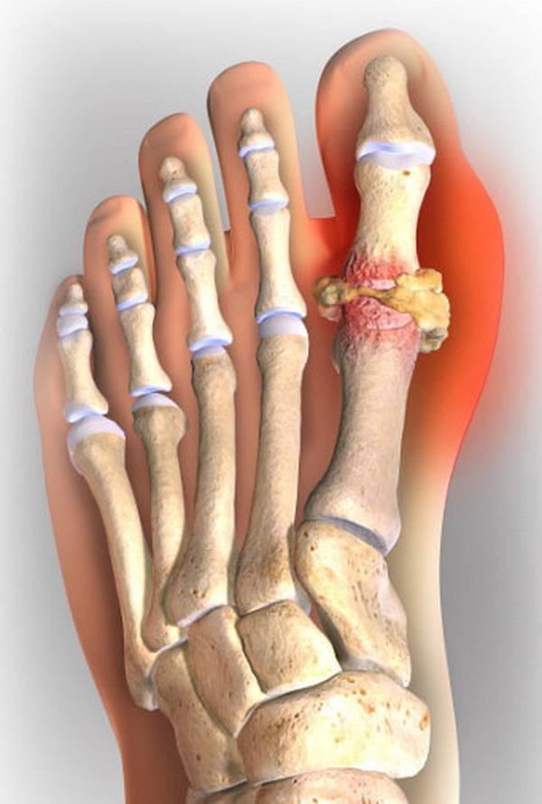 Воспаление сустава при подагре лечение