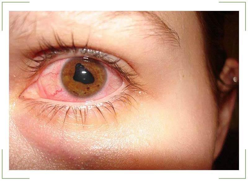 Увеит глаза: диагностика и когда требуется хирургическое лечение