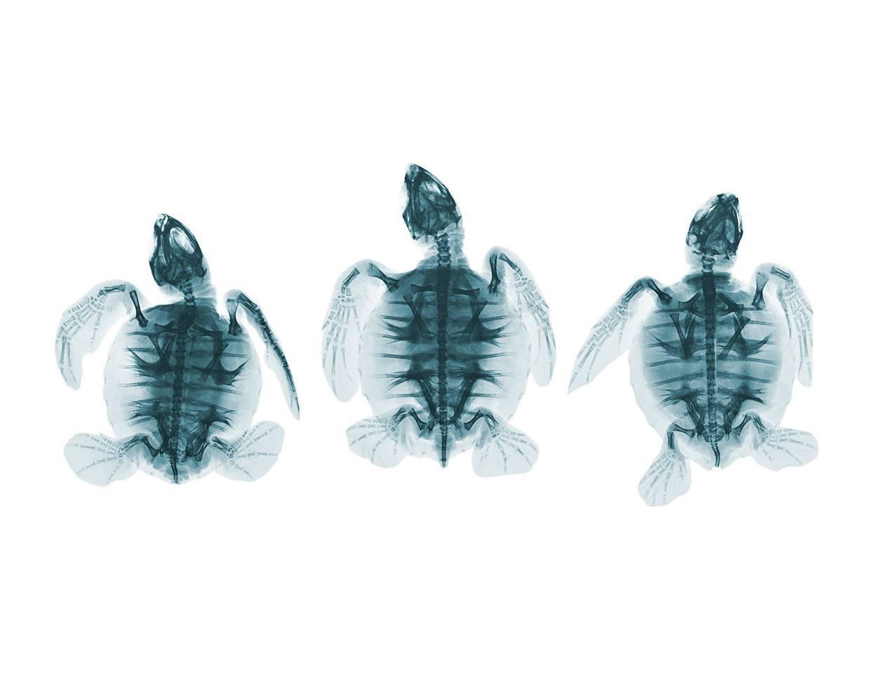 Что определяет рентген черепа?