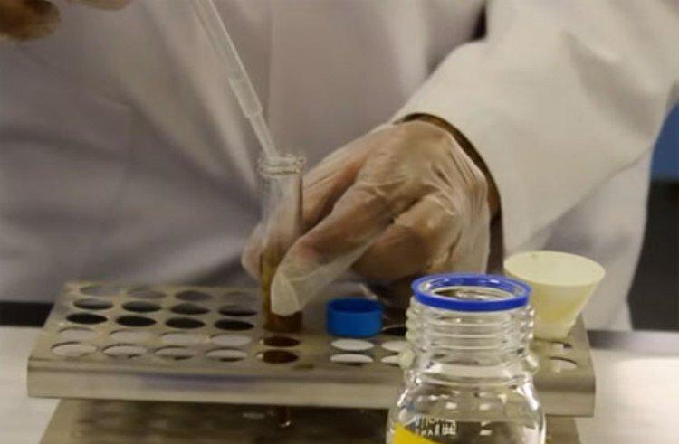 Анализ кала методом обогащения: что он выявляет и как его сдавать