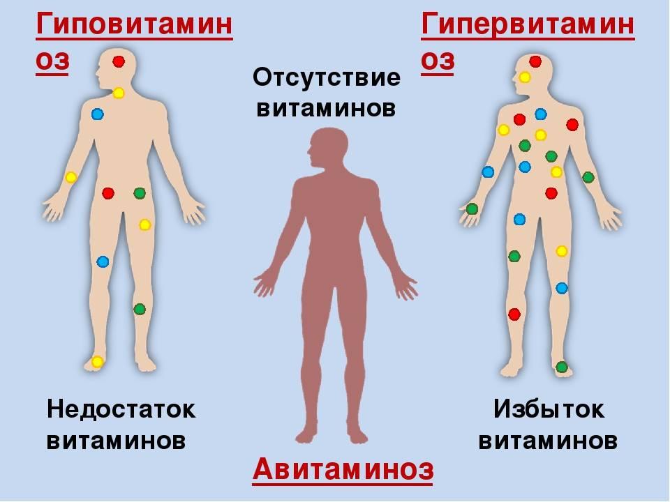 Гиповитаминоз— причины, симптомы и лечение гиповитаминоза