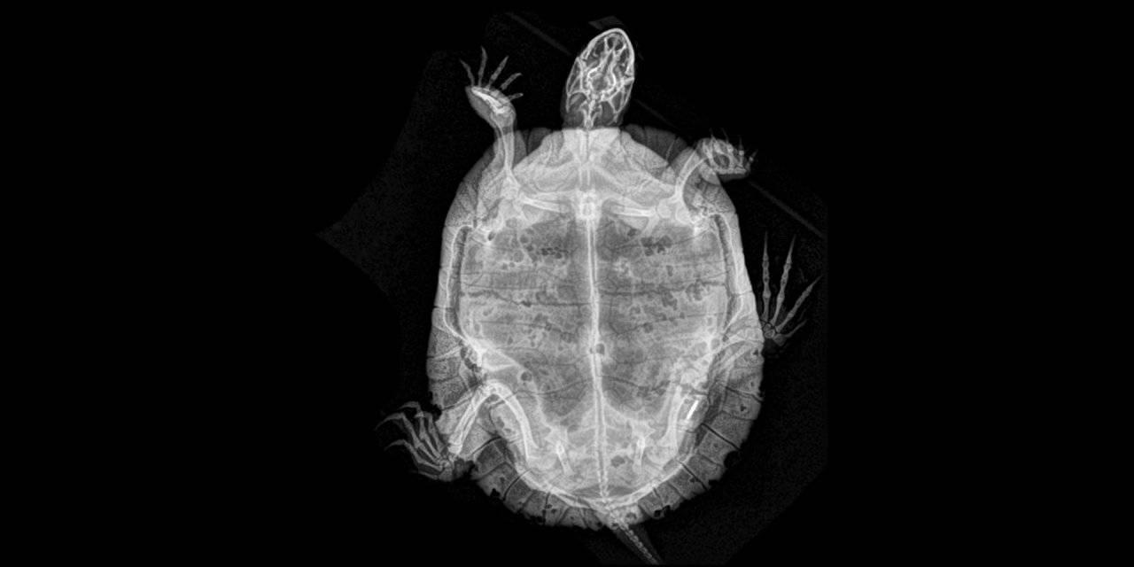 Рентген (рентгенография) черепа
