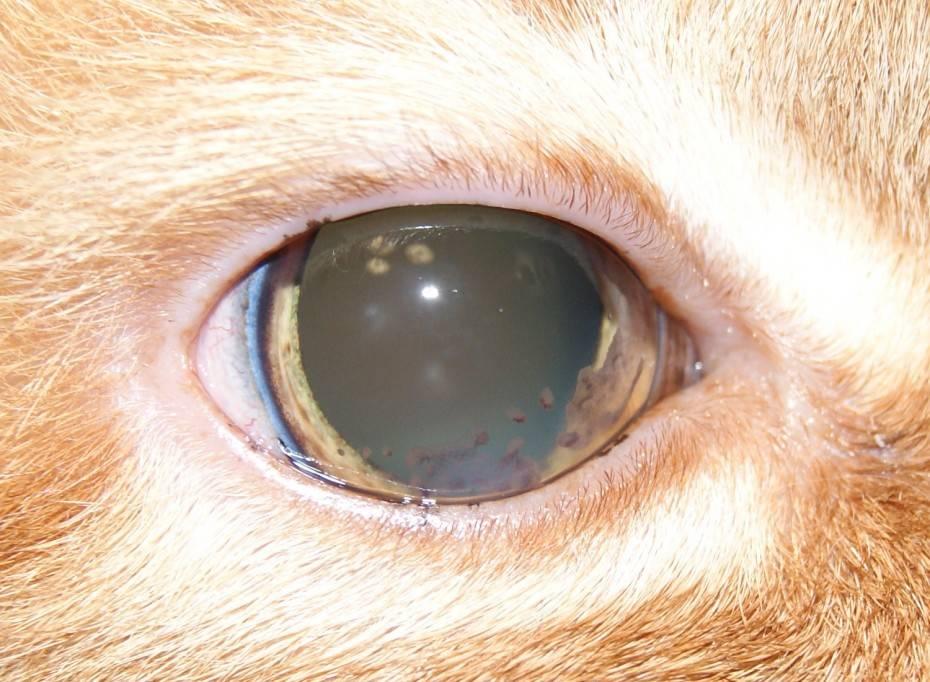 Лечение увеита глаз, ее причины, симптомы и диагностика