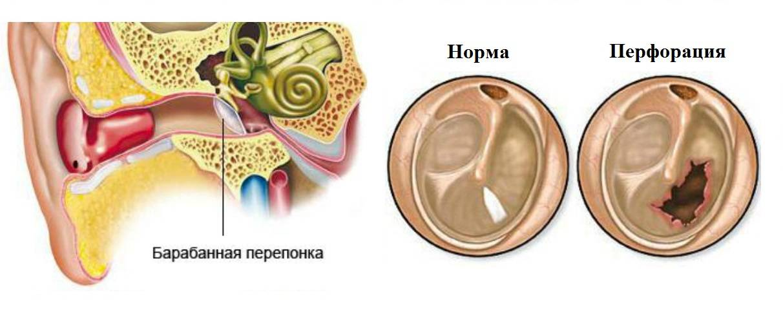 Средний отит. причины, симптомы, современная диагностика и эффективное лечение :: polismed.com