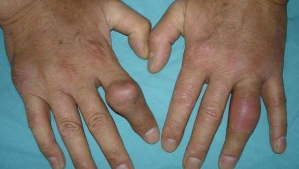 Характерные симптомы и все методы лечения подагры